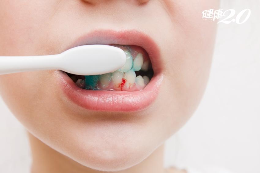 刷牙流血別輕忽!牙周病最愛找這些人 中風機率變3倍