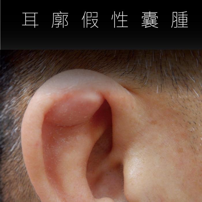 太養生搞出病!他每天「按耳朵」結果按出腫塊!醫:這些行為會傷耳廓