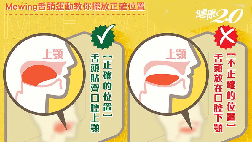 雙下巴原來是舌頭擺錯位置害的!牙醫師教你3步驟改變臉型