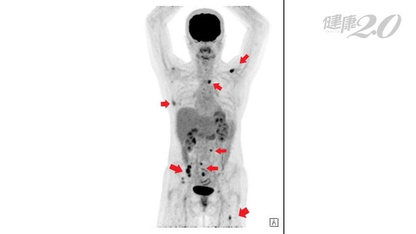 癌細胞很狡猾!乳癌切除2年 竟偷偷轉移8處骨骼