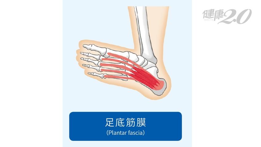 穿皮鞋、高跟鞋腳底好痛!「腳趾伸展操」僵硬全消失 有效預防足底筋膜炎