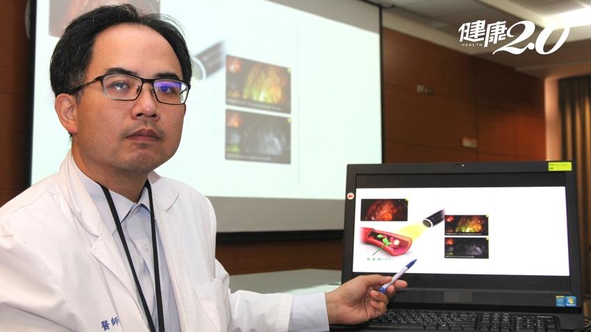 大腸癌12年蟬聯國人癌症之首!醫曝3種「致癌食物」要少吃