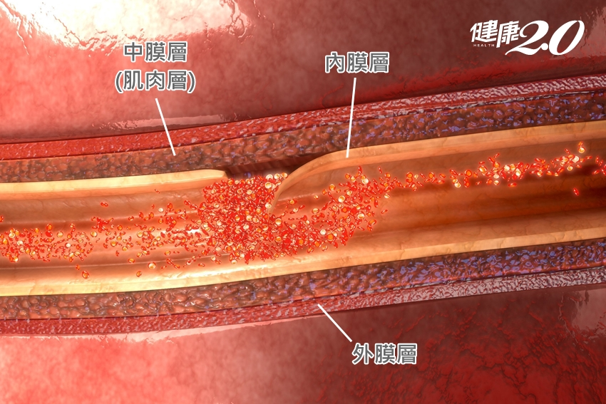 低溫慎防「主動脈剝離」死亡率每小時增1%…這年齡男性最好發