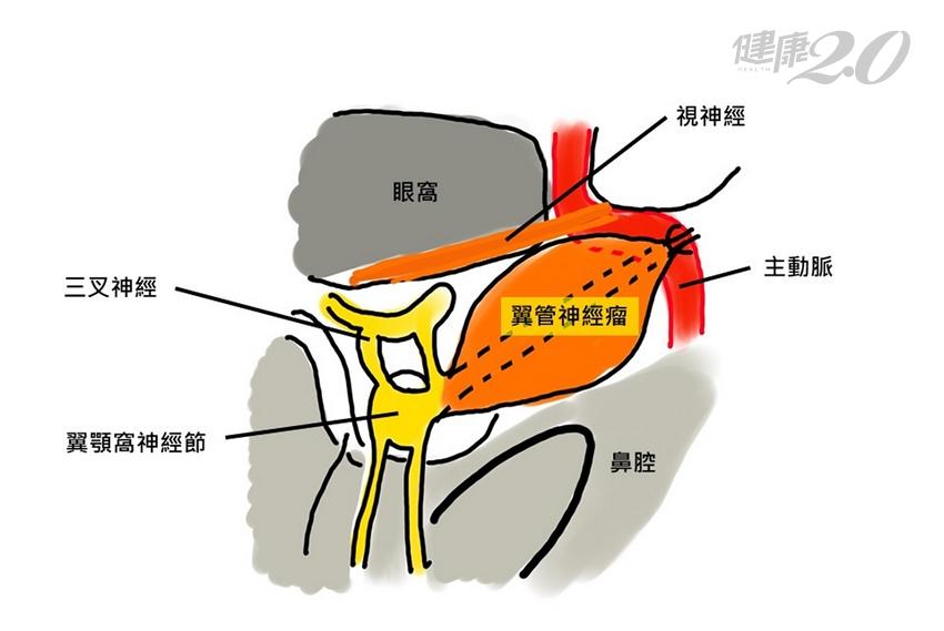 一吃東西就流鼻水 竟是「台灣首例」翼管神經瘤!全球僅20例