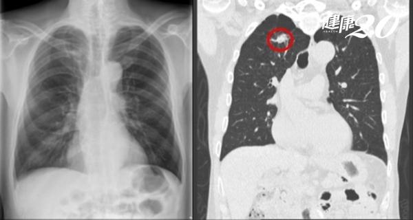 肺腫瘤很會躲?X光照4次都沒發現!醫師澄清「早期肺癌要靠它」
