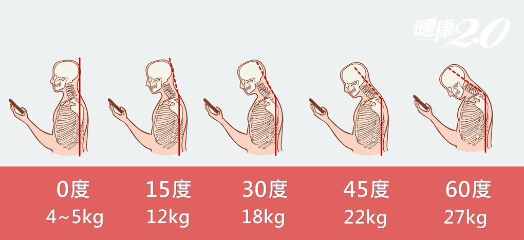 每天負重27公斤,難怪脖子受不了!一張圖看懂「低頭族」頸椎傷害有多大