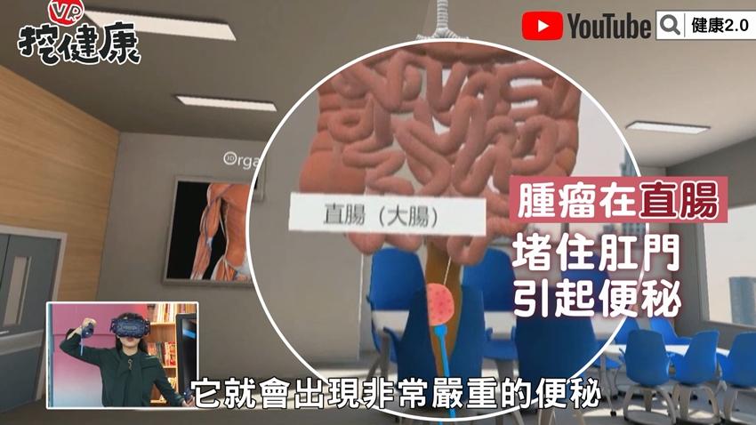 這些症狀暗示「大腸長腫瘤」!醫師VR實境揪出大腸癌