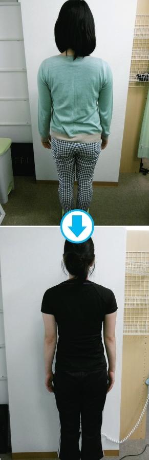 日院長「1種步行法」,幫她腰圍減17公分瘦6公斤,還改善腰痛、手腳冰冷