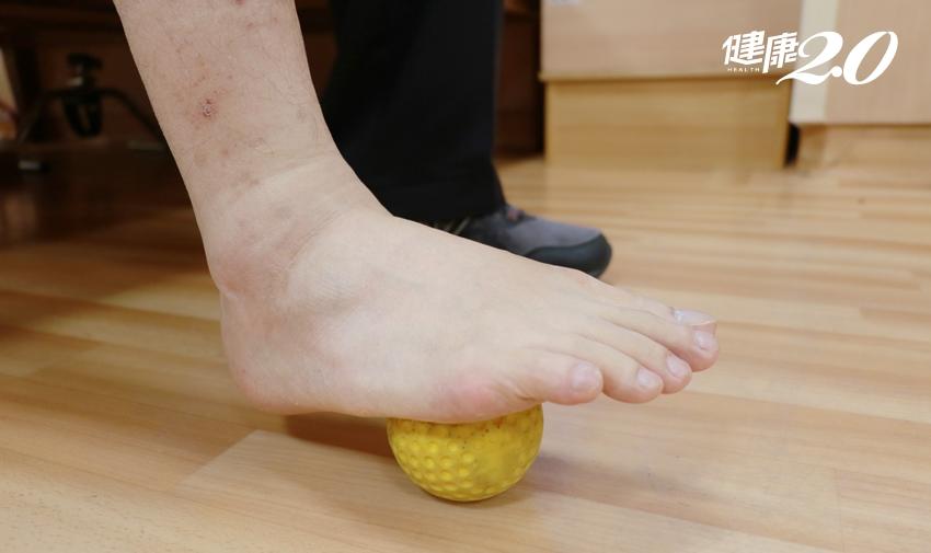 3招加速修復足底筋膜!跑步後腳底爆痛  醫師提醒「足部也要暖身」