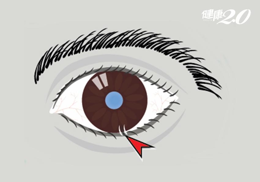 6旬翁狂流淚又畏光 驚見整排睫毛倒著長!睫毛倒插和年齡有關?