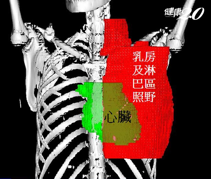 乳癌照放射線,反增心臟病風險!亞東「智慧擋塊」救心護肺