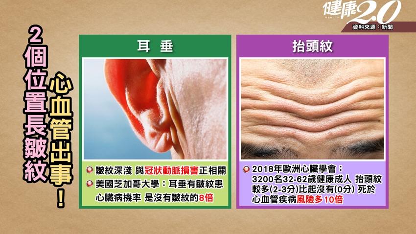 研究:臉上2處有皺紋,恐是心臟病警報!中醫「1杯茶」護心降血脂