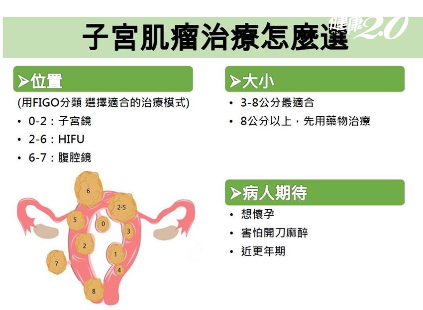 子宮肌瘤一直復發怎麼辦?新療法不用等肌瘤長大,隔著肚皮就能治