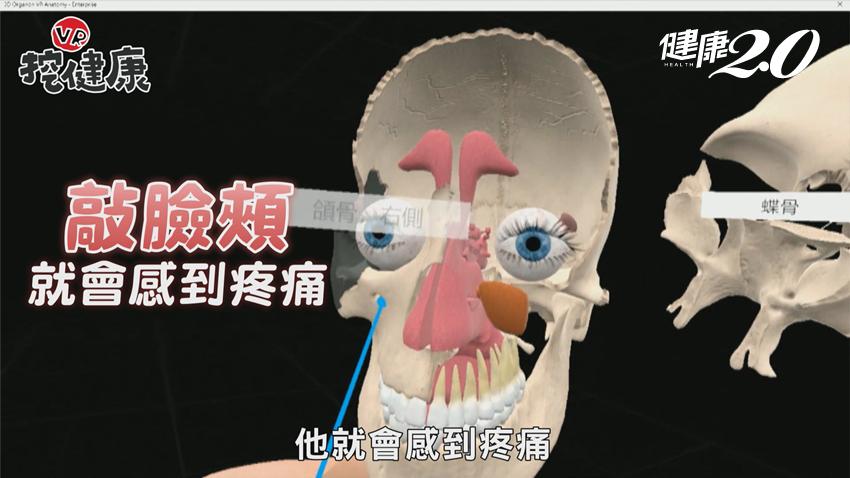 顴骨、眉心痛要小心!鼻竇炎不只流鼻涕,嚴重恐失明致命,VR揭開鼻竇神祕面紗