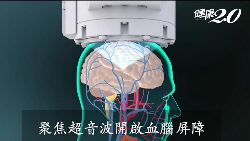 治療惡性腦瘤有重大進展!長庚成功突破「血腦屏障」,無傷口成功投藥