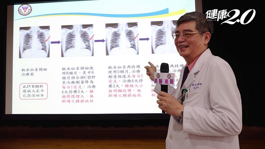 用「銅板價」就能抗肝癌!痛風藥「秋水仙素」為晚期肝癌帶來新希望