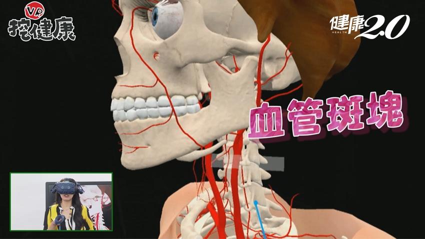 小心!這樣按摩會腦中風!醫師教你放鬆3招,肩頸天天有活力