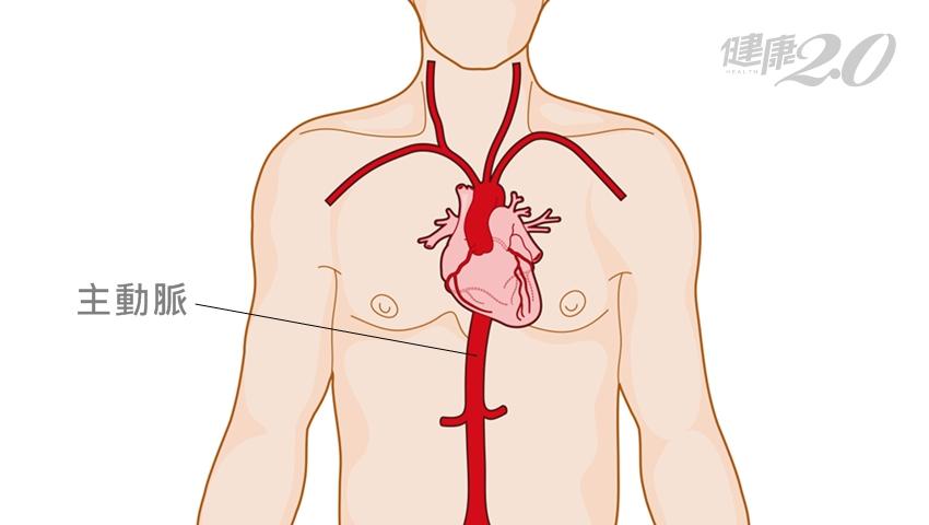 這種胸痛比心肌梗塞還致命!預防主動脈剝離的3個保命關鍵