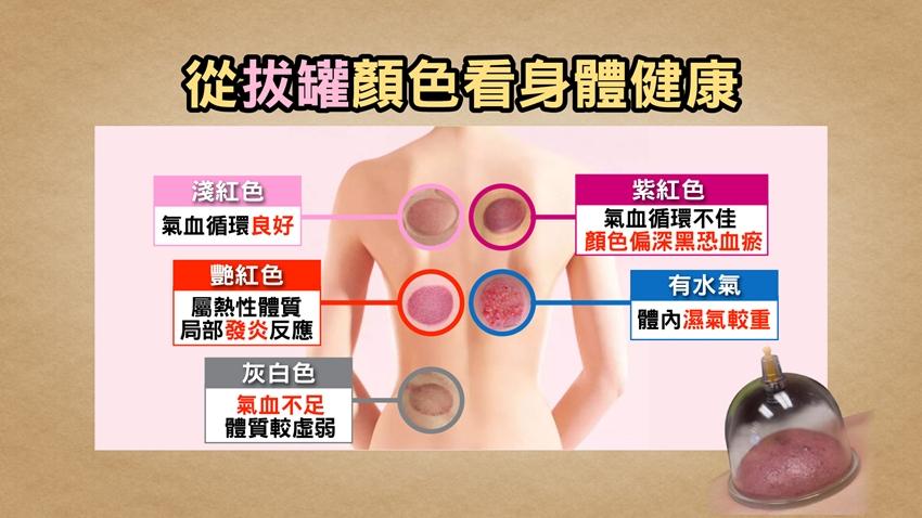 拔罐血印5種顏色 暗示你的健康狀況!中醫警告「這些部位」絕不能拔罐