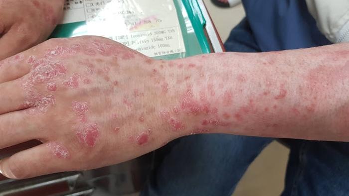 電子煙讓免疫系統爆炸!男子抽菸全身皮膚癢脫皮,竟還要用上化療藥…
