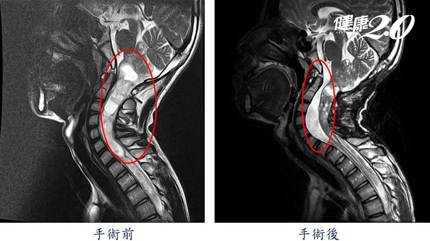 國三生只是脖子痛、手無法舉 竟是惡性骨髓腫瘤 醫說頸背劇痛常是警訊