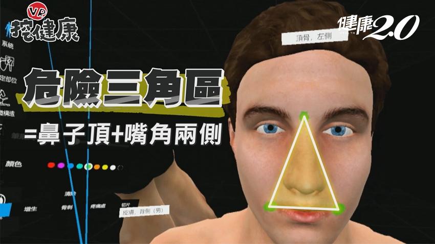 痘痘真的不能隨便擠!誤觸臉部「危險三角區」恐引發腦膜炎