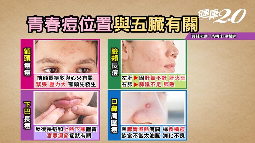 痘痘長在下巴代表什麼?4個冒痘位置,看出「五臟」危險訊號