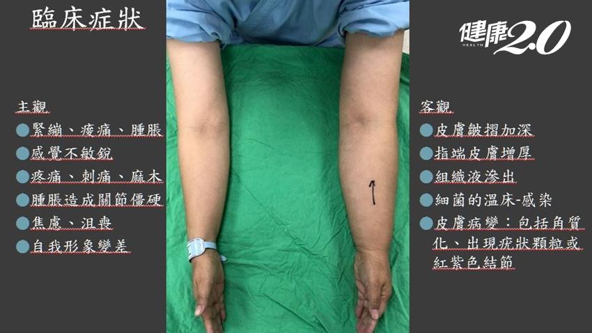 乳癌術後淋巴水腫變「米其林手」,新療法「淋巴管靜脈吻合術」改善回流