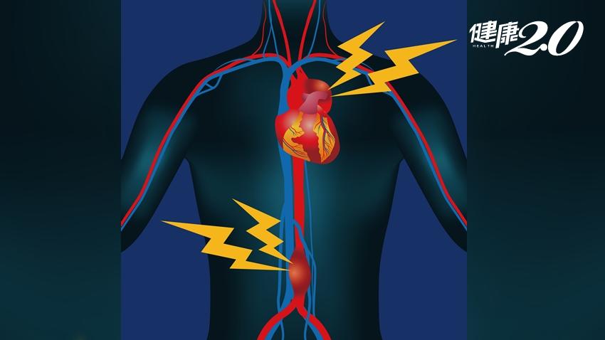 主動脈瘤幾乎沒症狀,破裂了才知道!台大醫師詳解2種治療方式