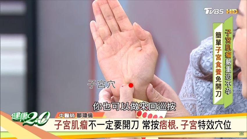 3個特效穴養子宮!子宮肌瘤一定得開刀嗎?醫師曝判斷準則