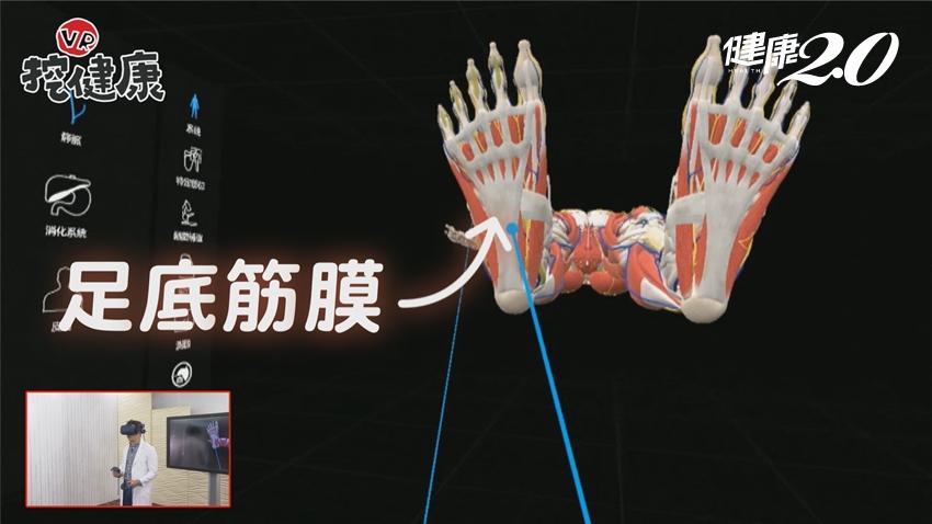 腳底痠痛別亂按摩!醫曝按錯恐引發足底筋膜炎 1招「腳底保養術」快速舒緩