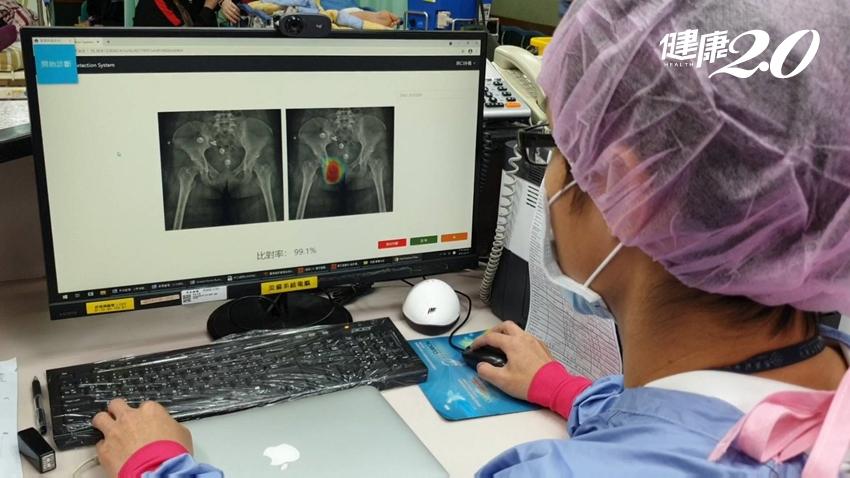用AI輔助外傷影像診斷,秒抓「骨折致命出血點」 林口長庚開創新紀元