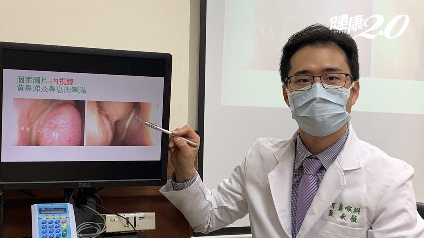 鼻竇炎竟釀眼瞎危機!3D立體定位導航系統 精準清除病灶