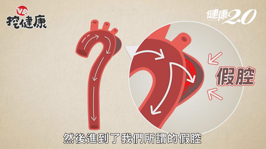 腰痠,竟是主動脈剝離!當心它是偉大模仿者,還會裝腹痛、背痛...