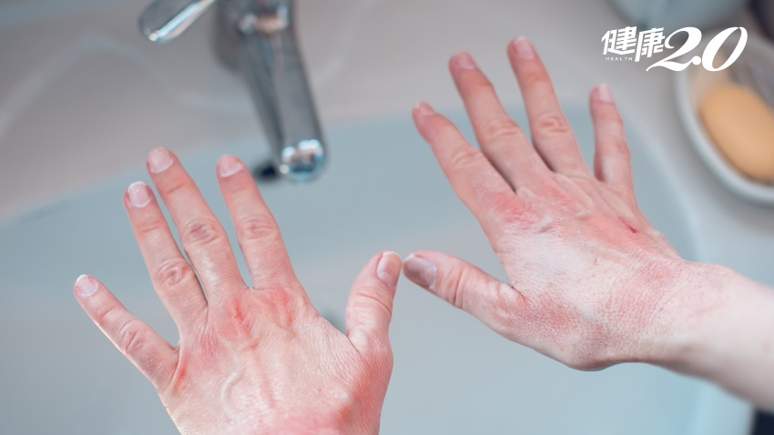 是你嗎?只用單手噴酒精消毒沒用!疫情嚴峻,皮膚科醫師的手口鼻不過敏對策