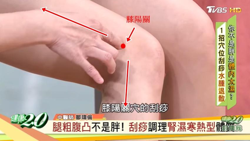 天氣熱,人昏沉!中醫師教你刮痧幫身體除濕、消水腫又瘦腿