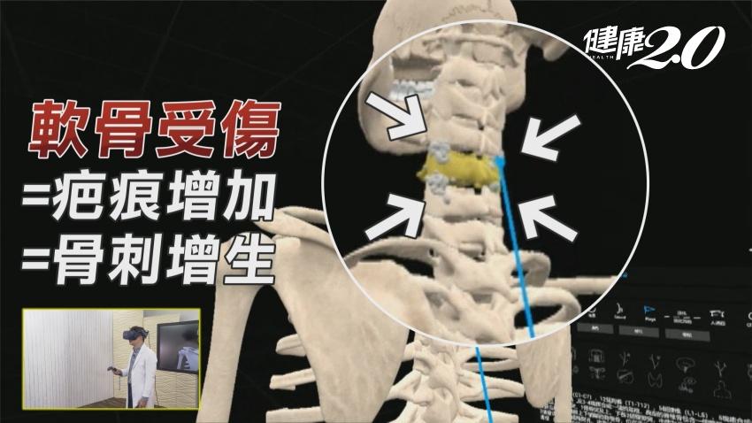 復健科醫師:90%的骨刺不用開刀!做好這件事就足夠
