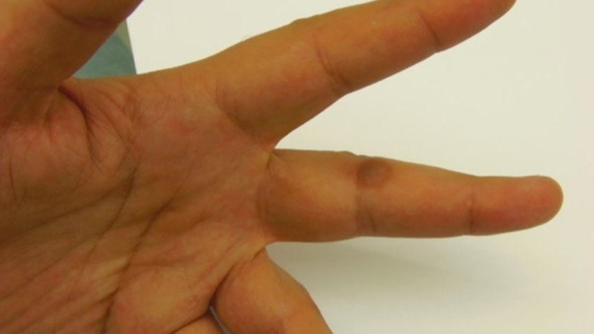 疫情停課在家狂玩3C?小心得皮膚病!醫師警告11種皮膚症狀