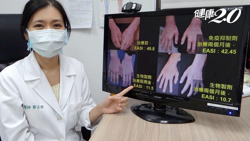 異位性皮膚炎和氣喘鼻炎大有關係!治療「新招」告別抓癢人生
