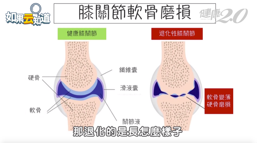 退化性關節炎是健康隱形殺手 專家教您3招自我評估膝關節有無問題