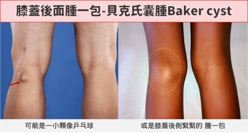 膝蓋後面腫一包是腫瘤嗎?復健科醫師揭真相:關節退化了