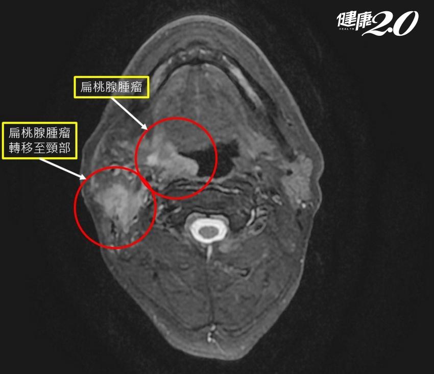 吞嚥困難懷疑癌症,卻因疫情拖半年才就醫 耳後腫塊竟是這個癌轉移