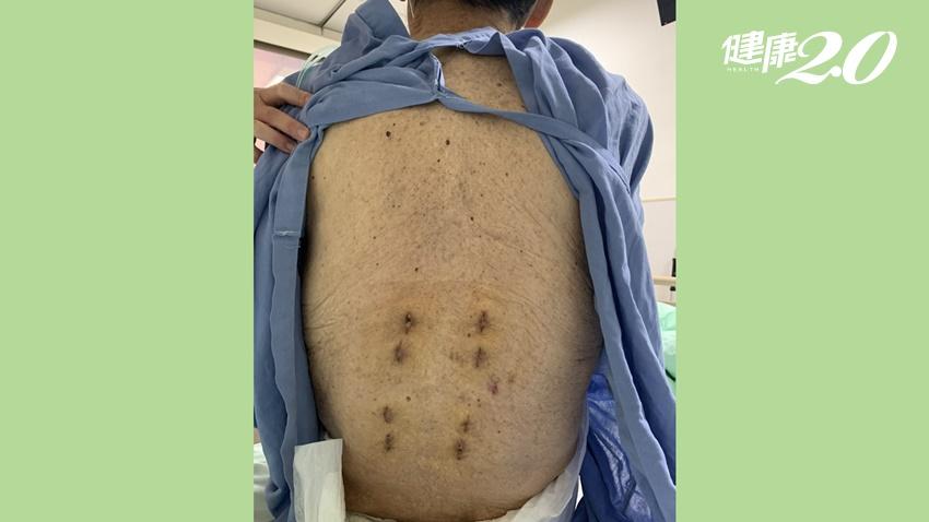 9旬老翁壓迫性骨折,補骨水泥仍痛不欲生!微創內固定手術重獲新生