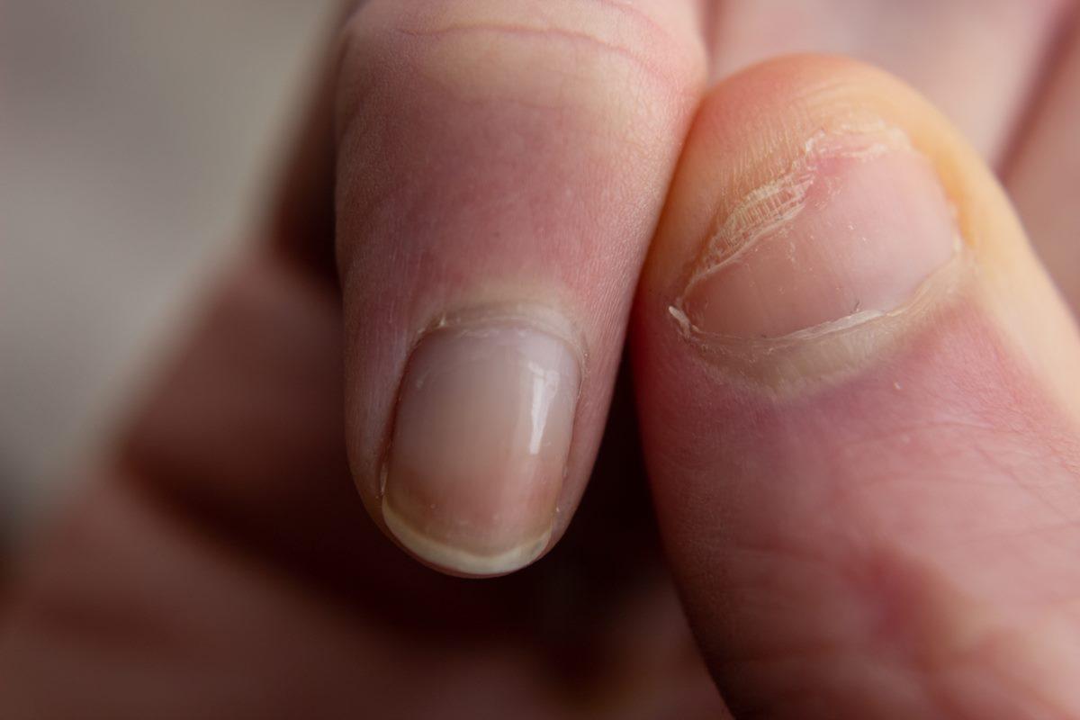 看「指甲」也能先快篩!新冠肺炎「指甲4症狀」,染疫過會出現白色條紋、指甲脫落特徵