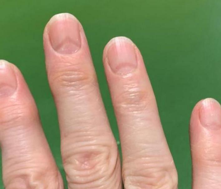 指甲也能看出有沒有染疫?醫師揭COVID-19患者指甲4大特徵