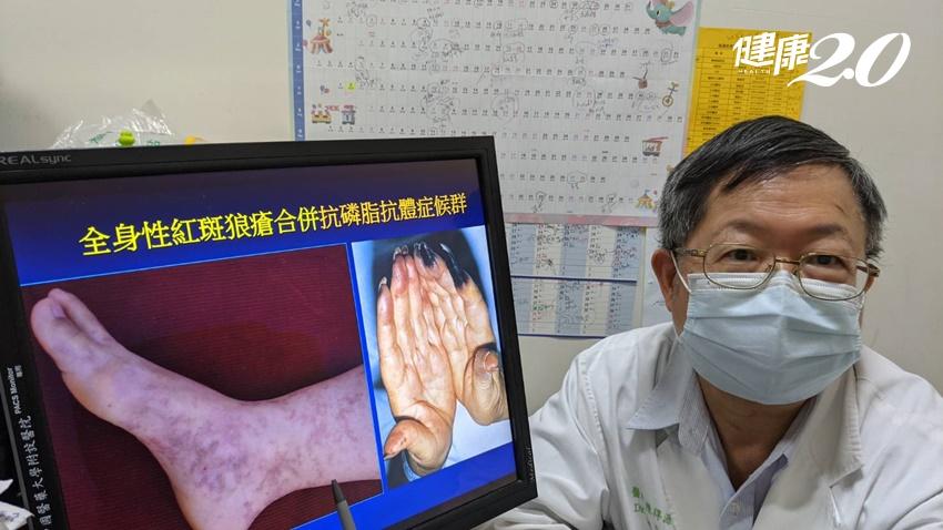 4種狀況需與醫師討論!風濕免疫病人打疫苗5個大哉問