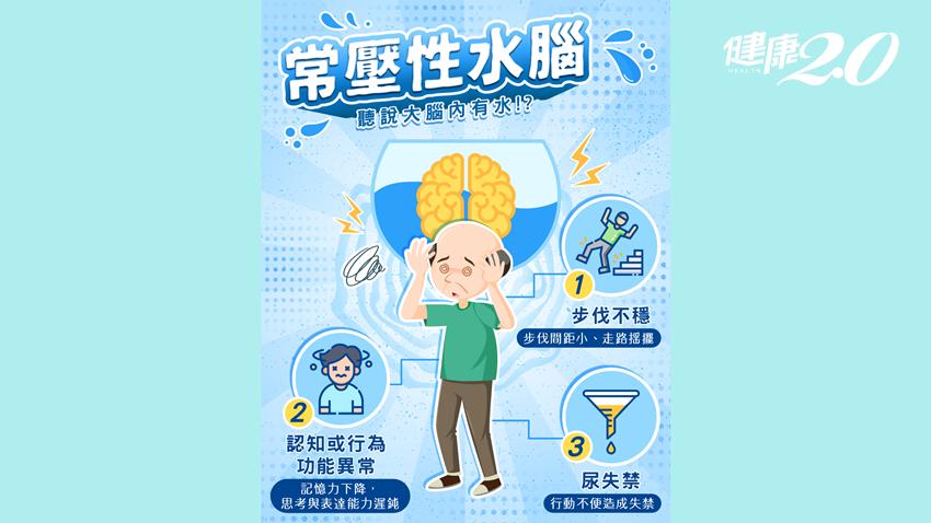 走路不穩、記憶力變差不一定是失智症!「常壓性水腦」3個常見症狀