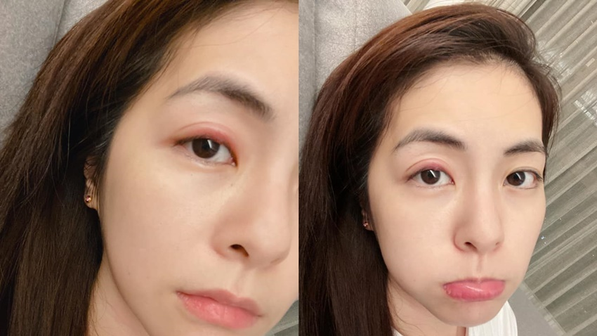 迪麗熱巴、任容萱都長針眼!醫曝不能用手扳眼尾,2症狀小心合併蜂窩性組織炎