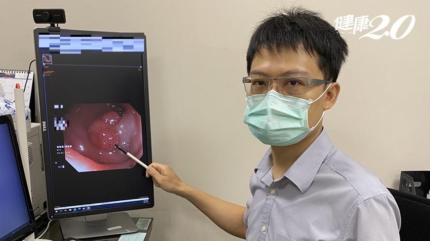 大腸鏡檢查做了沒?預防大腸癌,醫曝2族群更要積極檢查