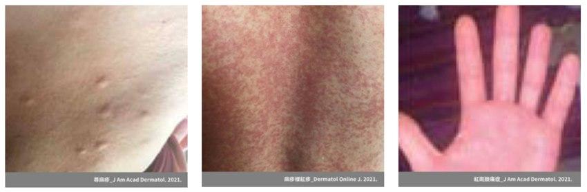 打新冠疫苗後皮膚紅腫痛,我是不是對疫苗過敏?醫:「1反應」不適合打第2劑